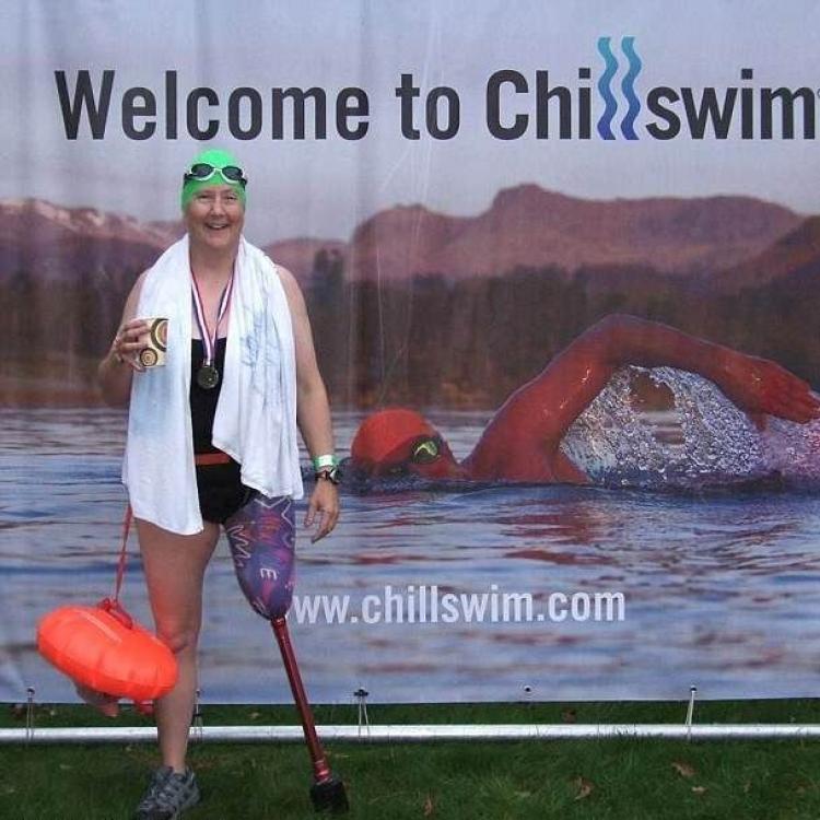 英截肢女泳手游完水發現義肢被偷走