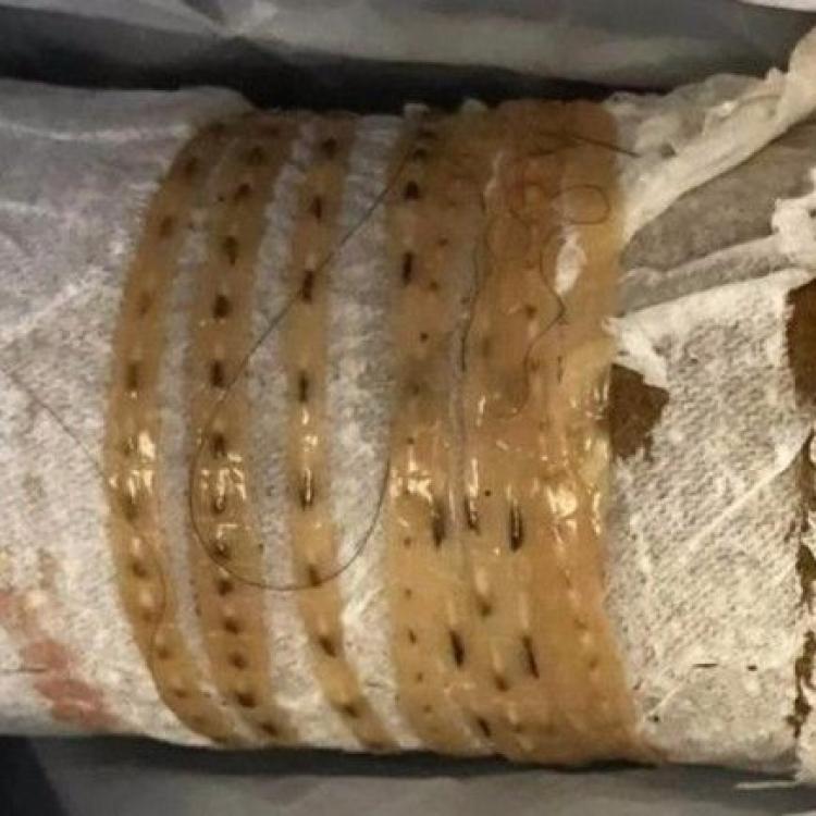 加州漢排出1.6米長寄生蟲