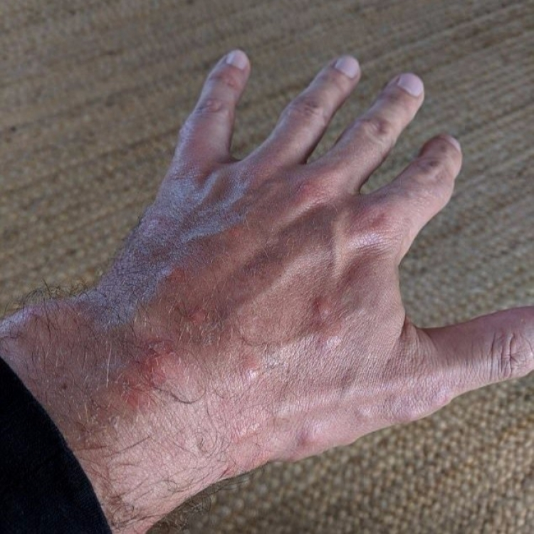 英漢疑被床蝨叮咬150次