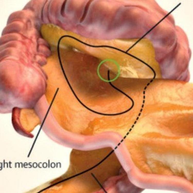 新人體器官被發現 或助癌症轉移