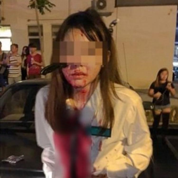 大馬華裔女遇劫 利刀直插入臉