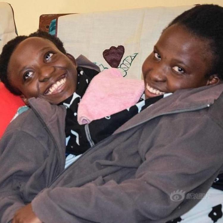 21歲世界知名連體嬰姐妹去世