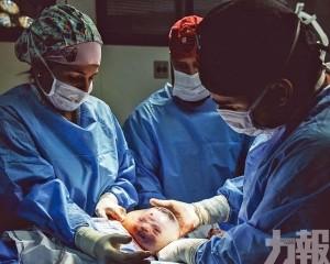 巴西嬰兒羊水未破即出生