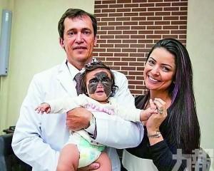 美女嬰赴俄完成首次手術