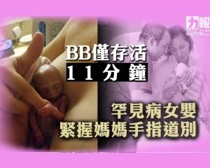 罕見病女嬰緊握媽媽手指道別