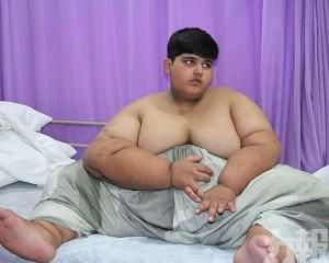 巴基斯坦10歲男孩重達197公斤