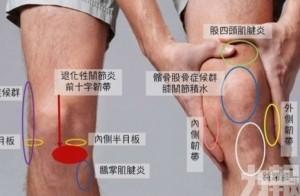 常見運動傷害(1)